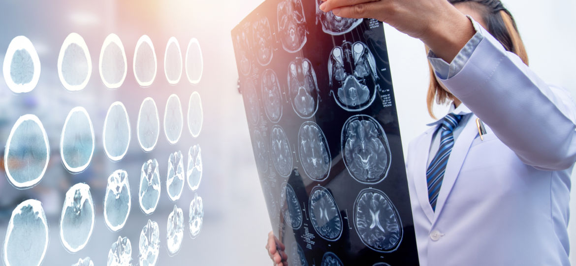 Traumatic Brain Injury And The Need For Home Health Care